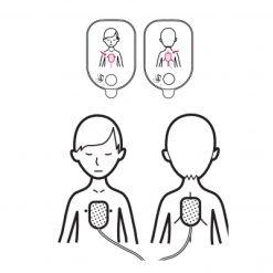 Hoe kinderelektroden AED plakken