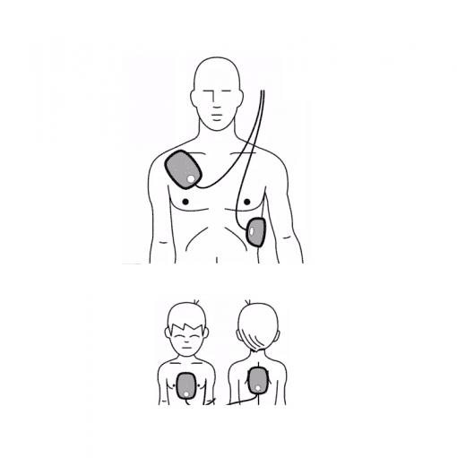 AED elektroden plaatsen volwassenen en kinderen